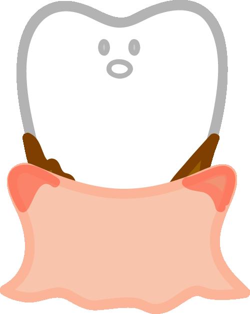 歯肉炎イメージ