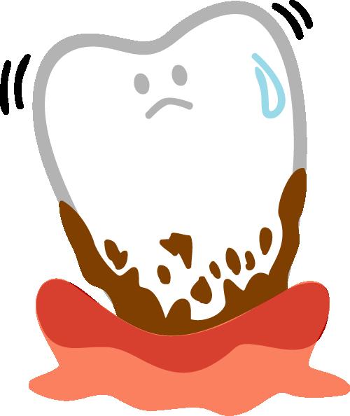 歯周炎イメージ