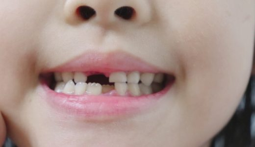 歯並びの治療について